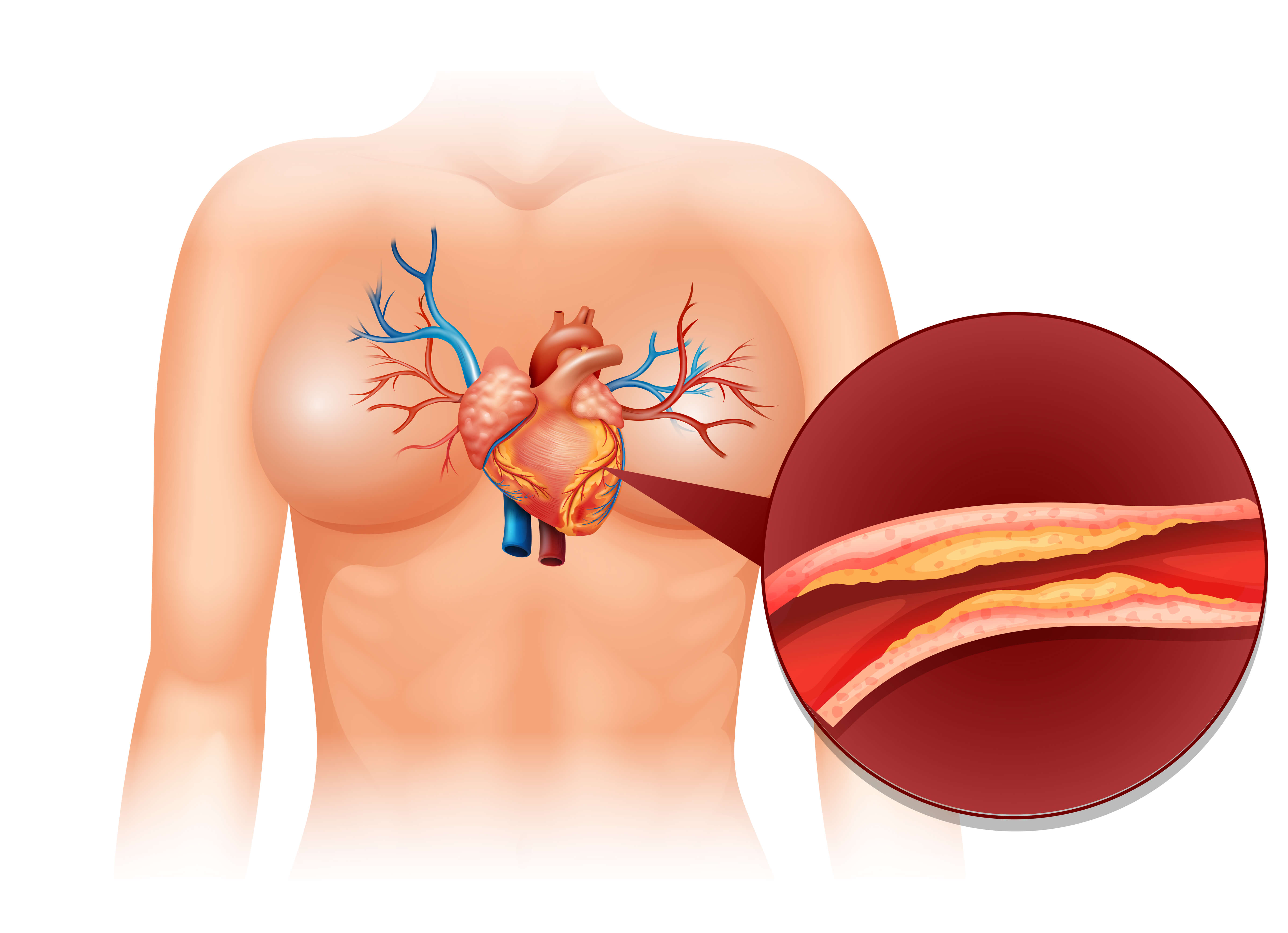 Cholesterol | Lipid Disorders | Cardiologist in Navi Mumbai